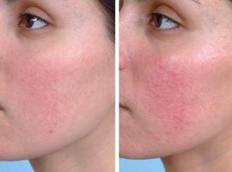 Купероз на лице - лечение медикаментозными и