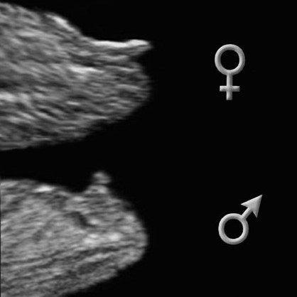 узи на 15 неделе беременности пол ребенка фото