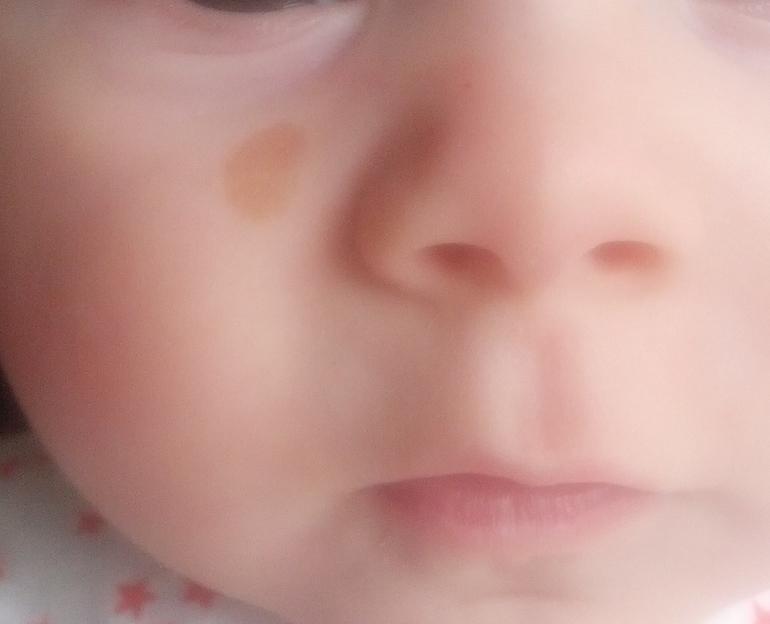 фото невус на лице