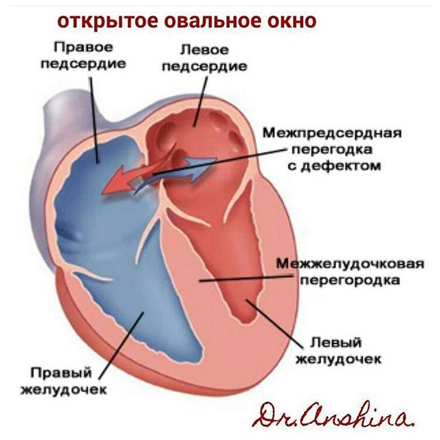 можно ли заниматься плаванмем при врожденном пороке сердца автогенераторы имеют