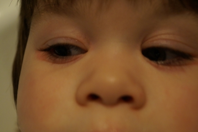 аллергия краснота под глазами у ребенка