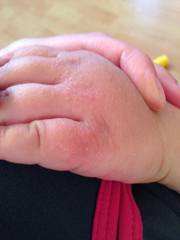 Сыпь как крапивница у ребенка на руках