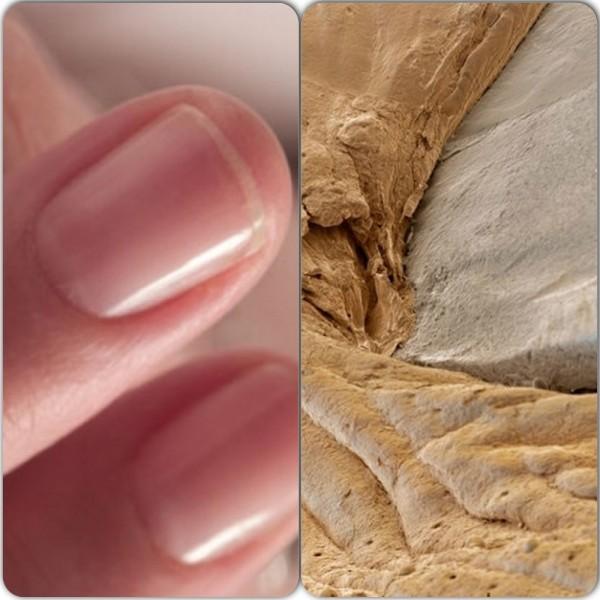 фото под микроскопом ногти