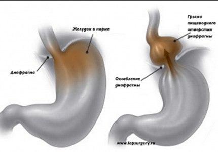 Спазм диафрагмы симптомы
