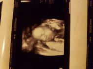 Фото УЗИ на 29 неделе беременности