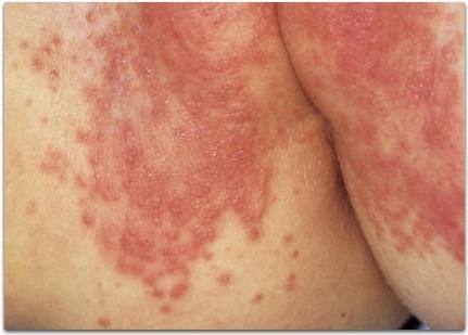 рецидивирующий дерматит при диабете