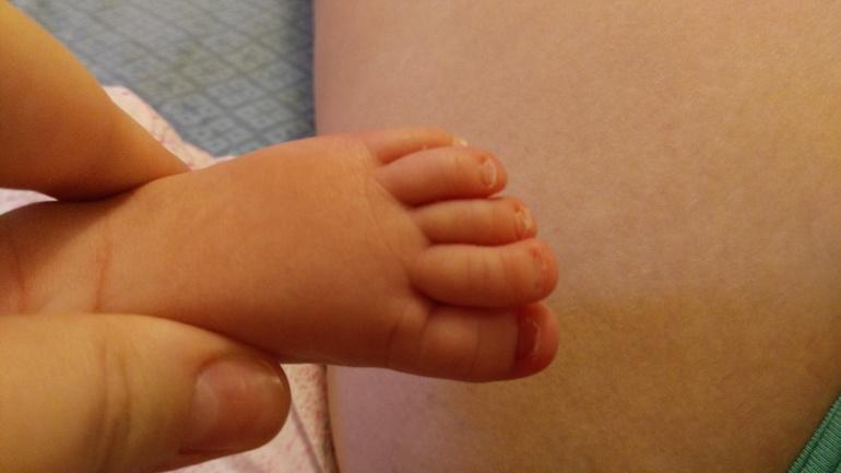 У грудничка врос ноготь на руке