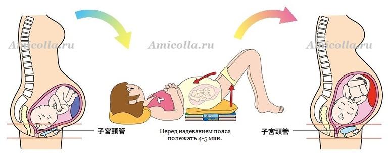 боль в тазобедренных суставах перед родами