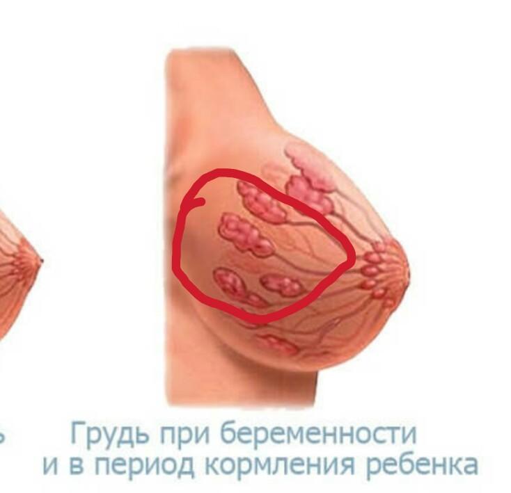 Почему болит левая грудь: обзор заболеваний грудных желез.